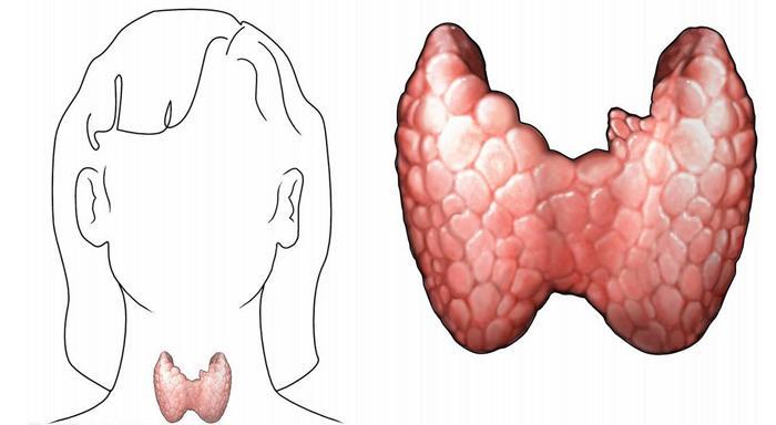 得了甲状腺结节 如何分辨它是良性还是恶性?