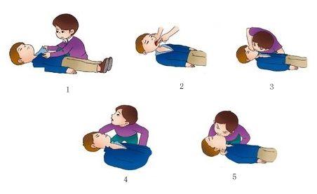 实用人工呼吸急救方法