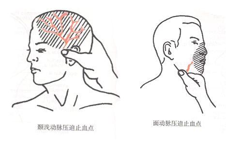 头顶颜面止血位置示意图